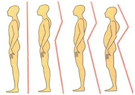 Как укрепить мышечный корсет поясничного отдела