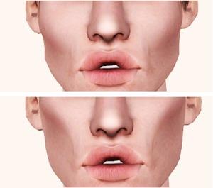 Впалые щеки: как сделать эффект, как убрать с помощью пластики